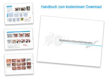 Handbook on intraoral photography . Kostenloser Download