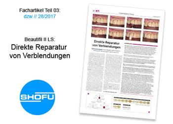 Beautifil II LS: Direkte Reparatur von Verblendungen